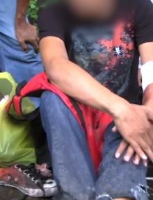 Ang biktimang si Hubert Palatilla na nagtamo ng sugat sa paa at braso habang nilalapatan first aid ng UNTV News and Recue Team Cebu.
