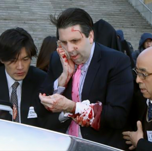 U.S. Ambassador to South Korea Mark Lippert leaves after he was slashed in the face by an unidentified assailant at a public forum in central Seoul March 5, 2015. Lippert was attending a breakfast forum in central Seoul when a man attacked him, slashing him in the face, a witness at the event told Reuters.
